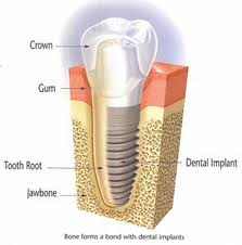 , Why Dentists Recommend Dental Implants, Tongue Tie Center, Tongue Tie Center